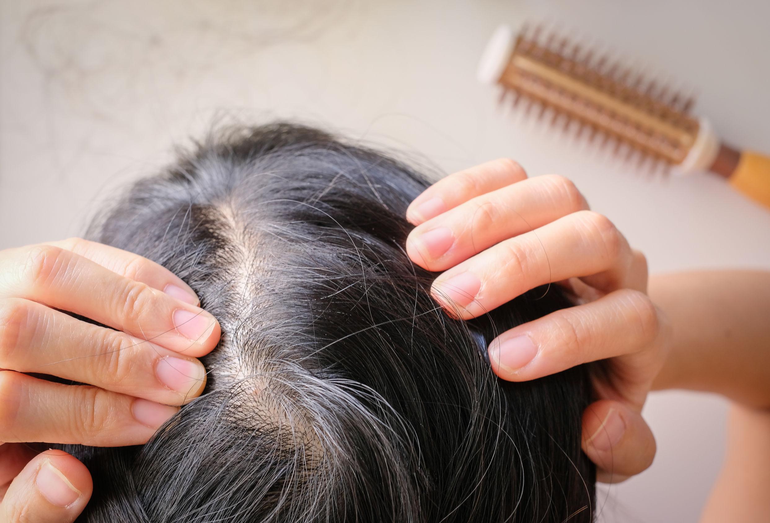 Astaxanthin bei Haarausfall: Die wichtigsten Fragen und Antworten